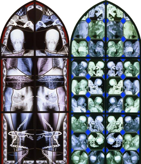 X-ray Sex, MRI Sex ? stained-glass-xrays. stained-glass-xrays